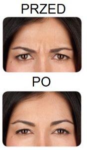 przed-i-po